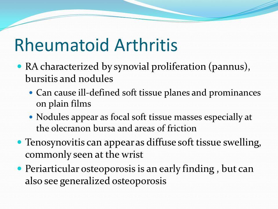 Rheumatoid Arthritis RA characterized by synovial proliferation (pannus), bursitis and nodules.