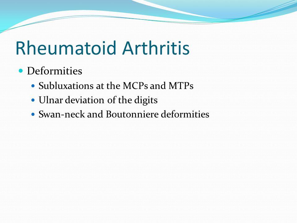 Rheumatoid Arthritis Deformities Subluxations at the MCPs and MTPs