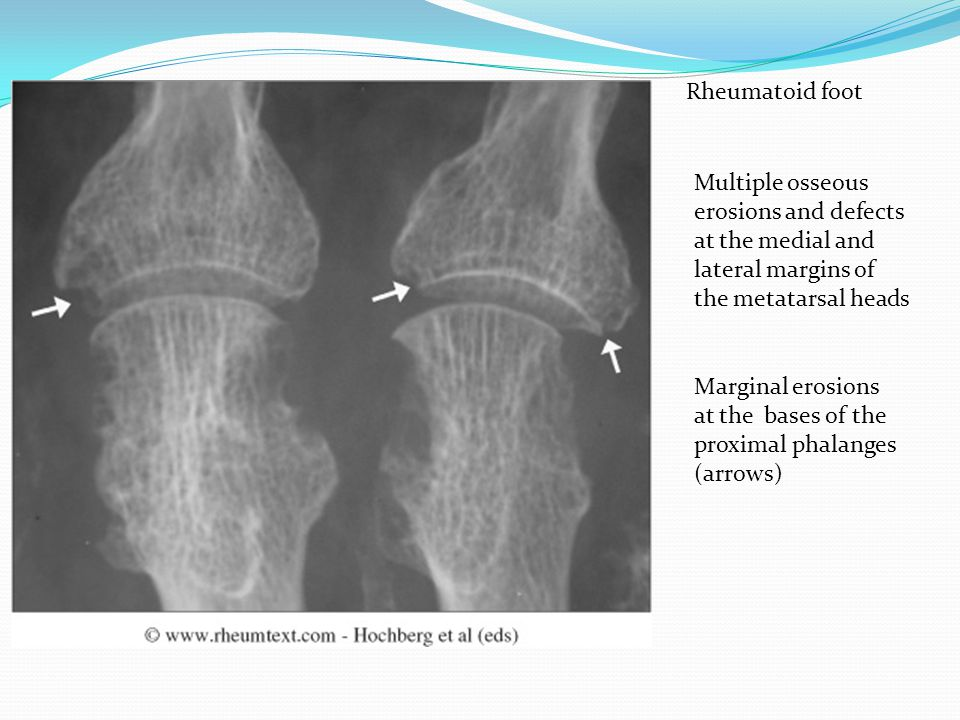Rheumatoid foot Multiple osseous erosions and defects at the medial and lateral margins of the metatarsal heads.