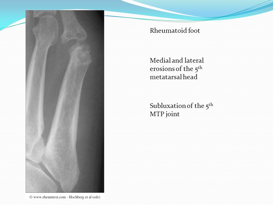Rheumatoid foot Medial and lateral erosions of the 5th metatarsal head.