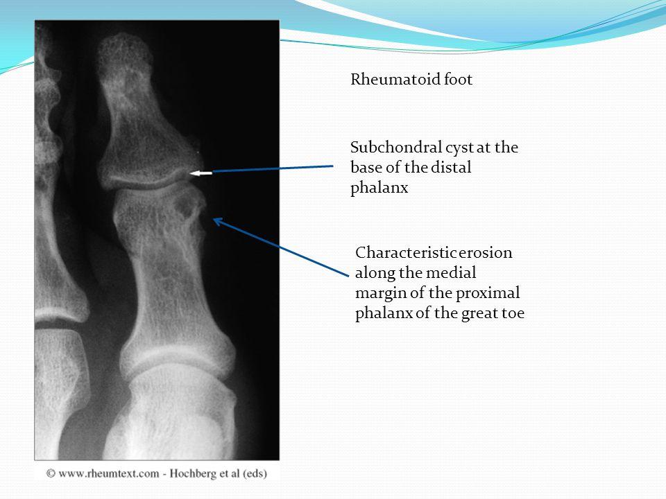 Rheumatoid foot Subchondral cyst at the base of the distal phalanx.