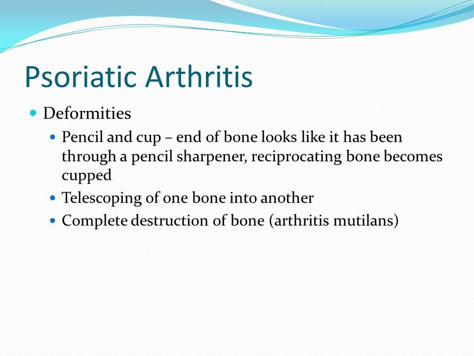 Psoriatic Arthritis Deformities