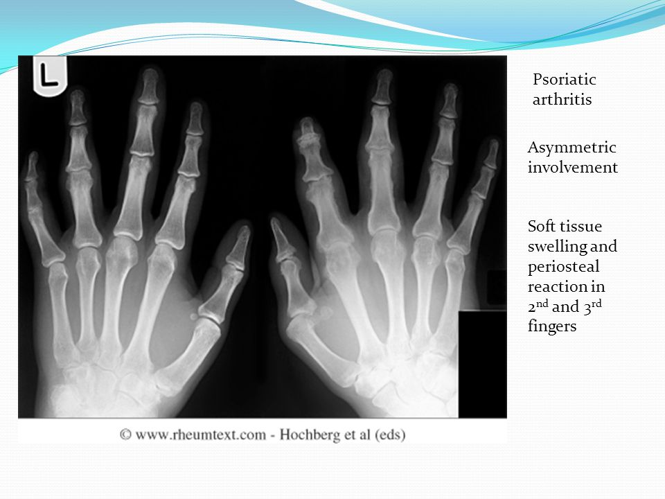 Psoriatic arthritis Asymmetric involvement.