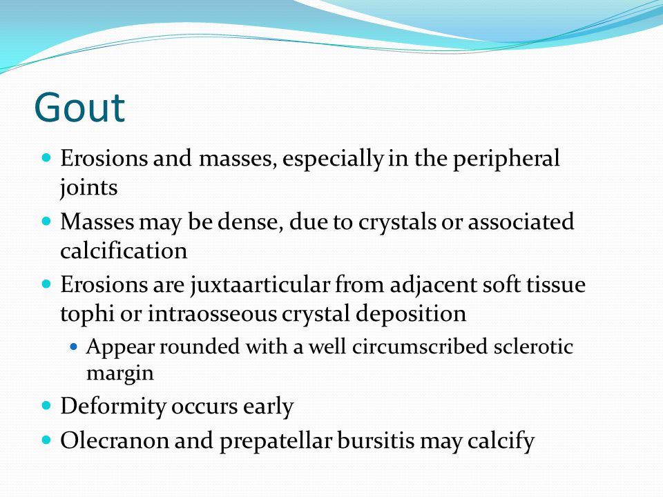 Gout Erosions and masses, especially in the peripheral joints