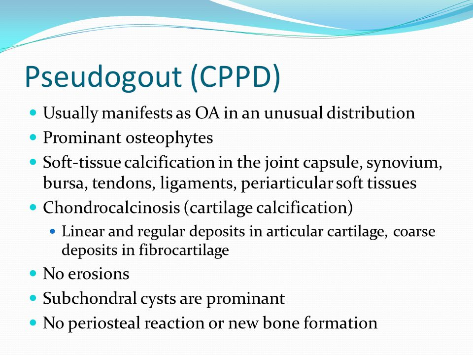 Pseudogout (CPPD) Usually manifests as OA in an unusual distribution