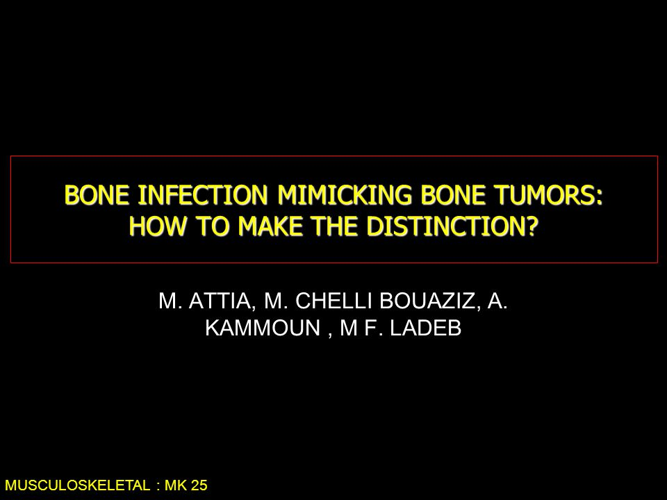 BONE INFECTION MIMICKING BONE TUMORS: HOW TO MAKE THE DISTINCTION