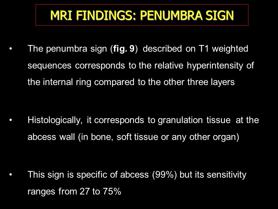 MRI FINDINGS: PENUMBRA SIGN