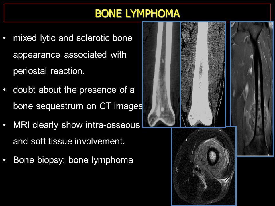 BONE LYMPHOMA mixed lytic and sclerotic bone appearance associated with periostal reaction.