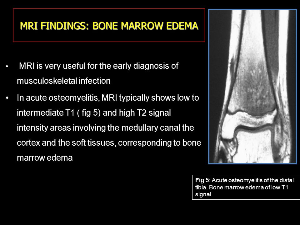 MRI FINDINGS: BONE MARROW EDEMA