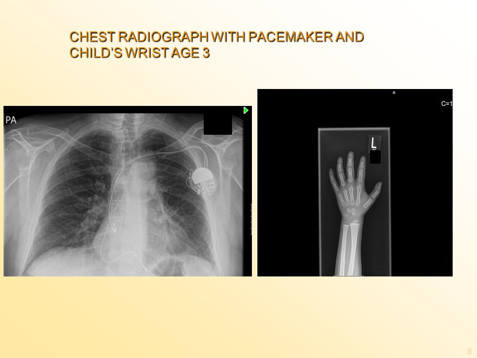 CHEST RADIOGRAPH WITH PACEMAKER AND CHILD'S WRIST AGE 3