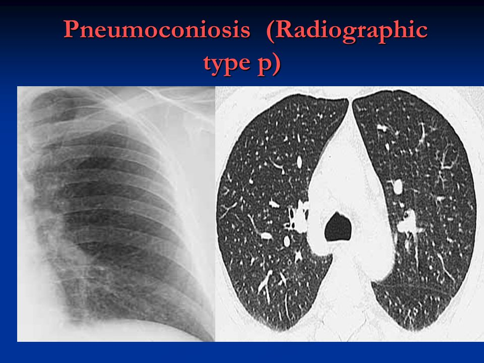 Pneumoconiosis (Radiographic type p)