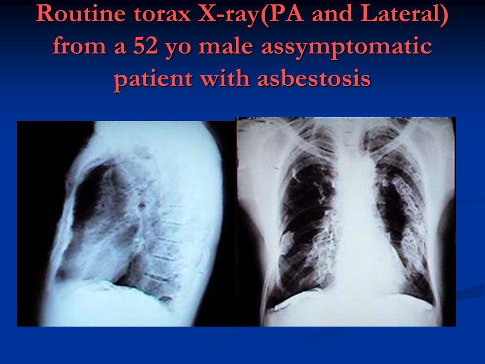 Routine torax X-ray(PA and Lateral) from a 52 yo male assymptomatic patient with asbestosis