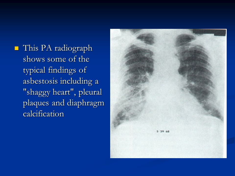 This PA radiograph shows some of the typical findings of asbestosis including a shaggy heart , pleural plaques and diaphragm calcification