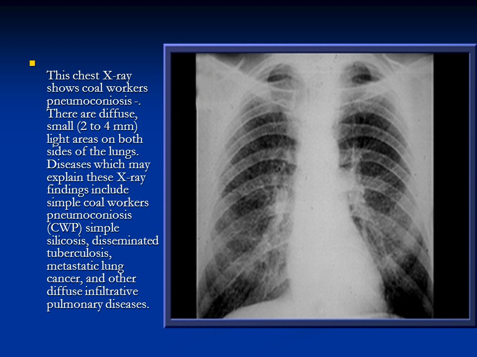 This chest X-ray shows coal workers pneumoconiosis -