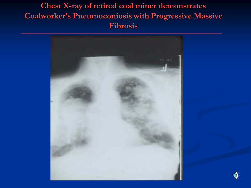 Chest X-ray of retired coal miner demonstrates Coalworker's Pneumoconiosis with Progressive Massive Fibrosis