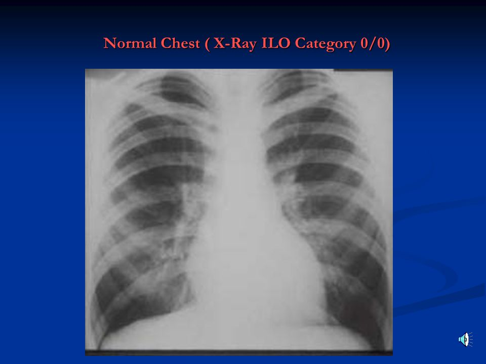 Normal Chest ( X-Ray ILO Category 0/0)
