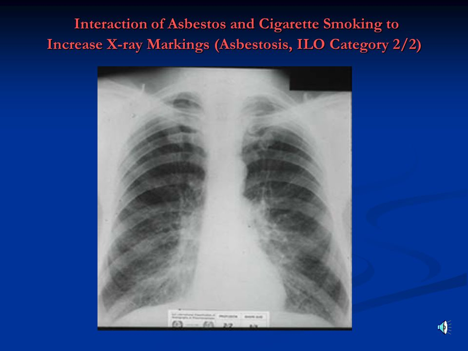 Interaction of Asbestos and Cigarette Smoking to Increase X-ray Markings (Asbestosis, ILO Category 2/2)