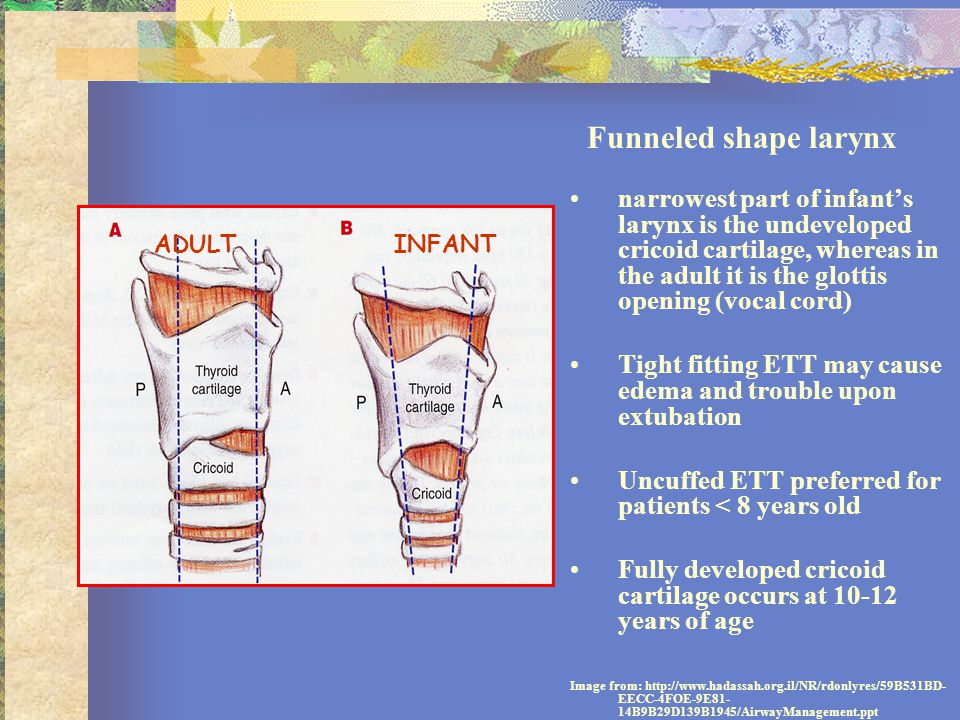 Tight fitting ETT may cause edema and trouble upon extubation