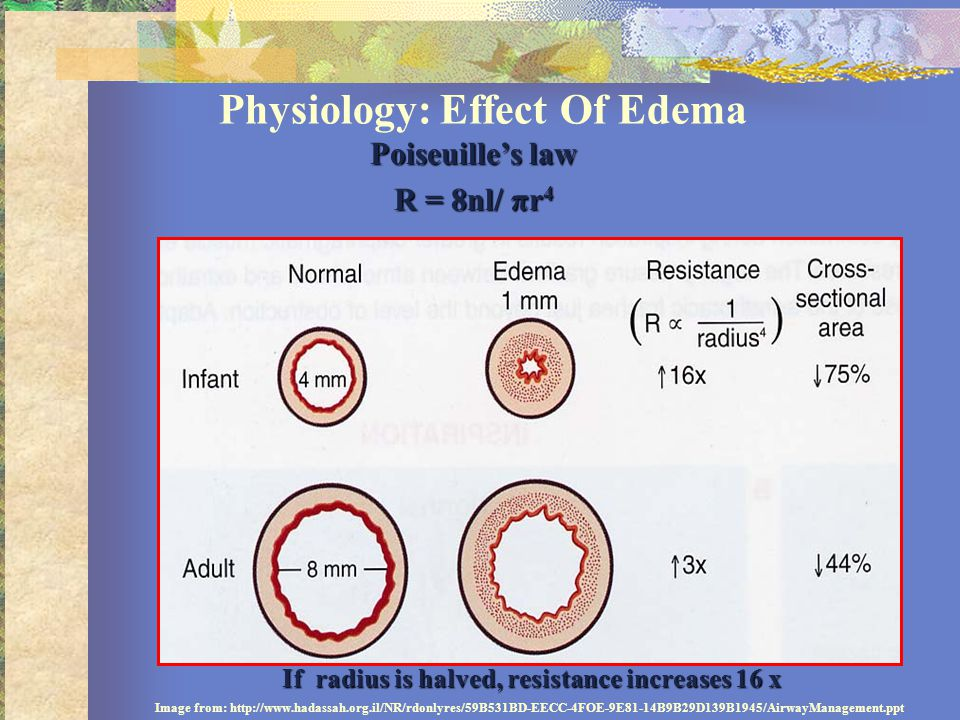 Physiology: Effect Of Edema