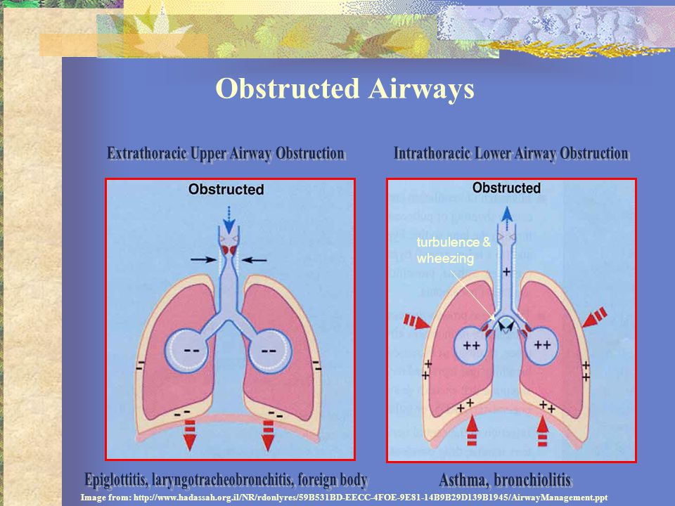 Obstructed Airways Extrathoracic Upper Airway Obstruction