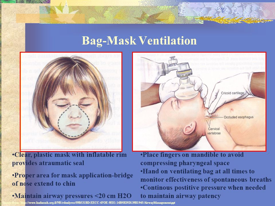 Bag-Mask Ventilation Clear, plastic mask with inflatable rim provides atraumatic seal.