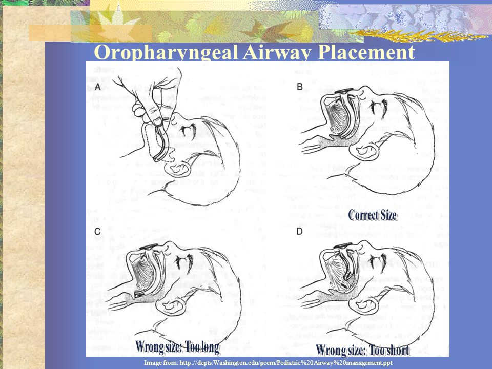 Oropharyngeal Airway Placement