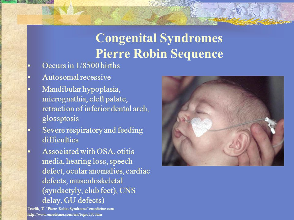 Congenital Syndromes Pierre Robin Sequence