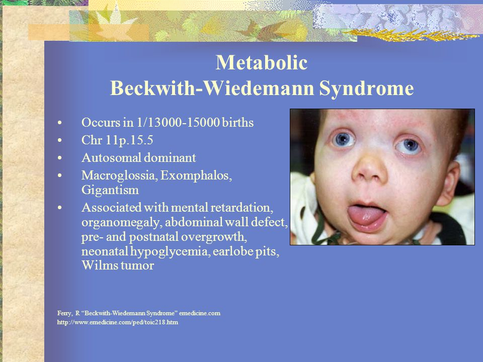 Metabolic Beckwith-Wiedemann Syndrome