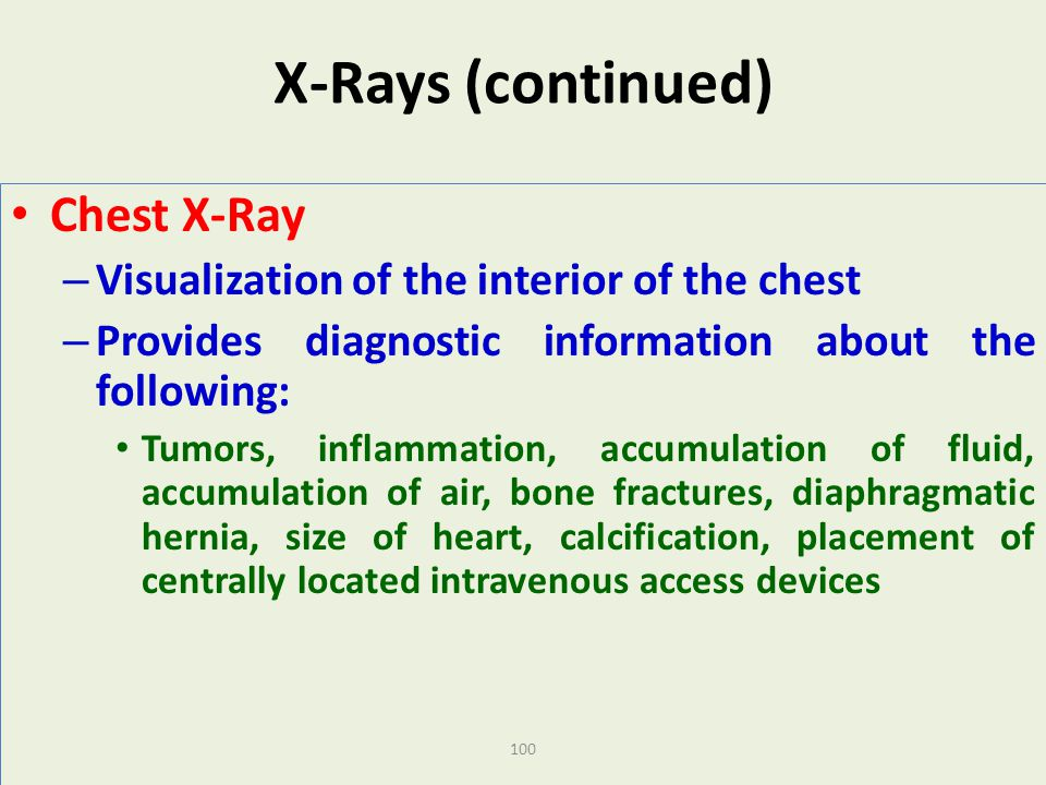 X-Rays (continued) Chest X-Ray
