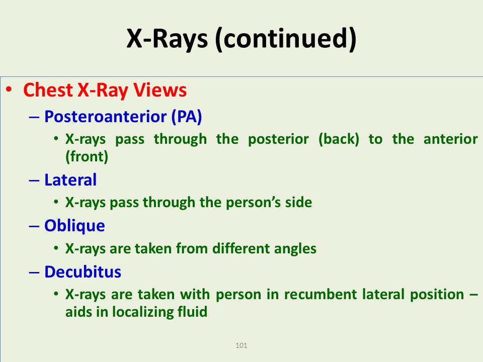 X-Rays (continued) Chest X-Ray Views Posteroanterior (PA) Lateral