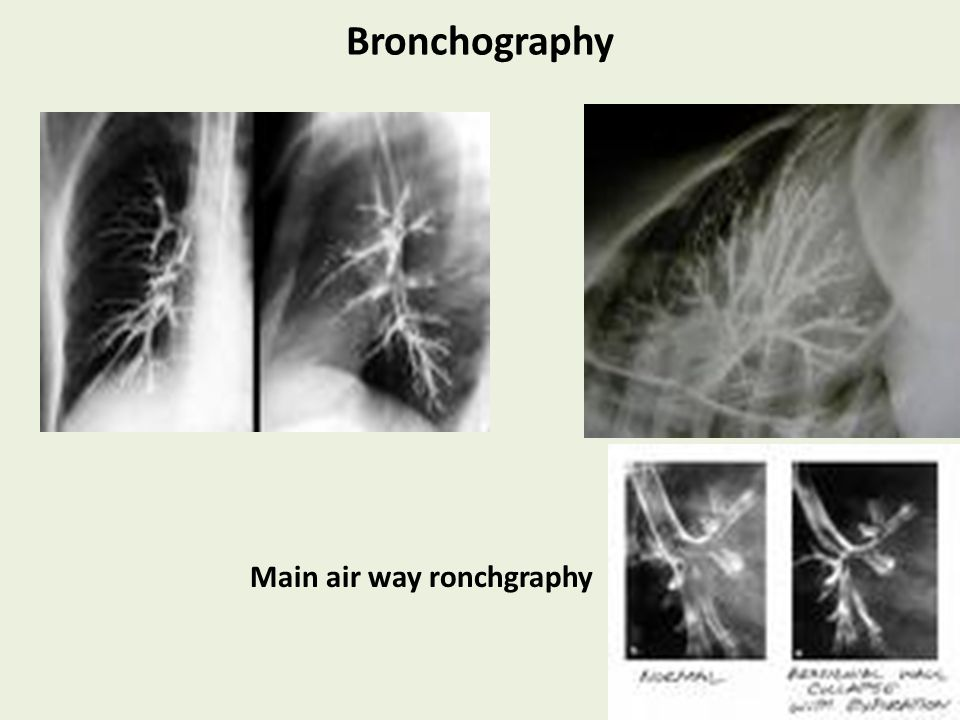 Bronchography Main air way ronchgraphy