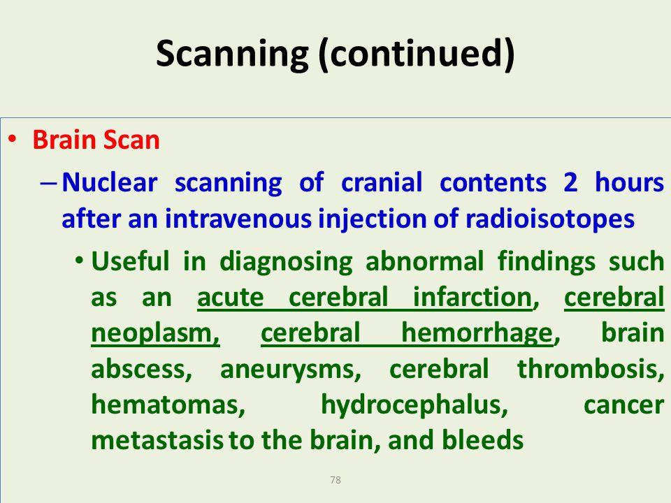 Scanning (continued) Brain Scan