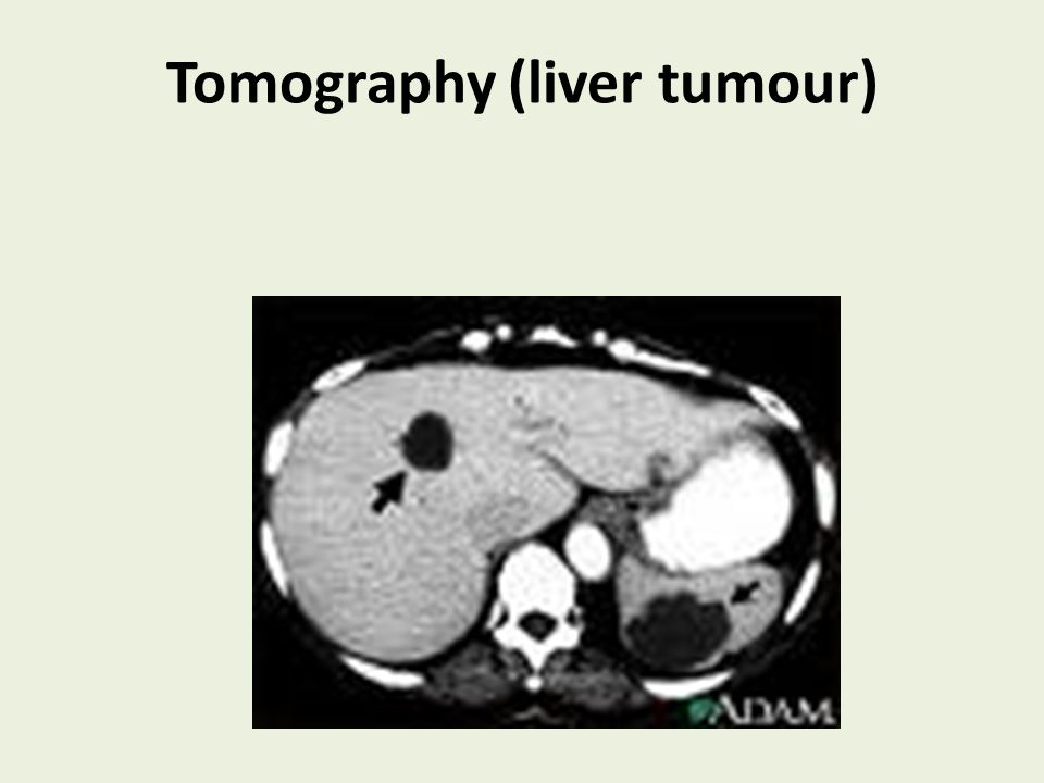 Tomography (liver tumour)