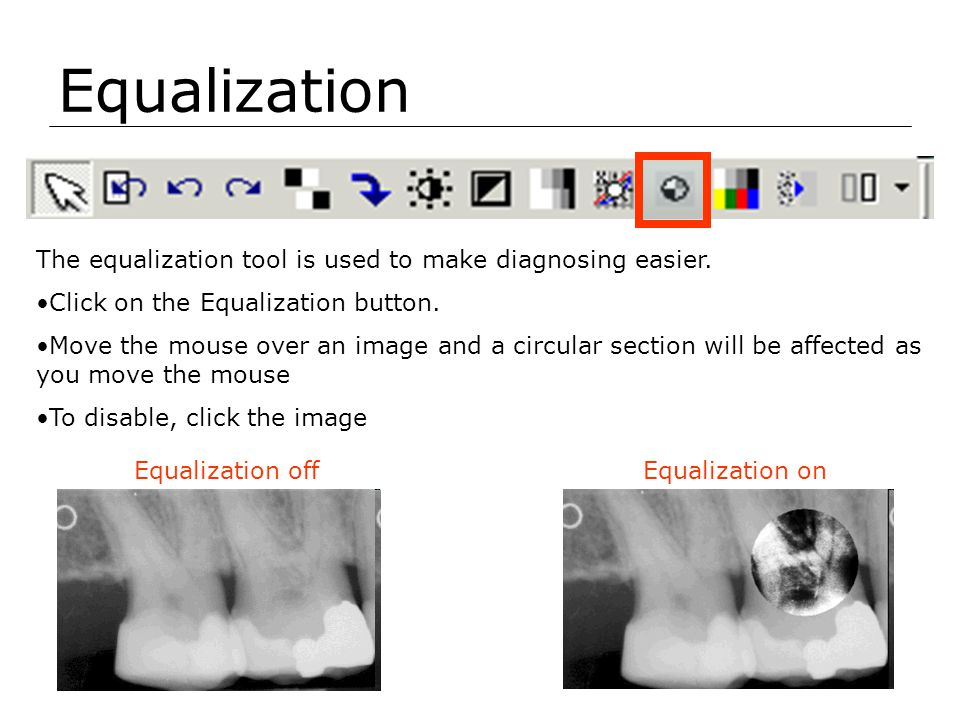 Equalization The equalization tool is used to make diagnosing easier.