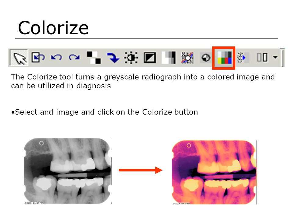 Colorize The Colorize tool turns a greyscale radiograph into a colored image and can be utilized in diagnosis.