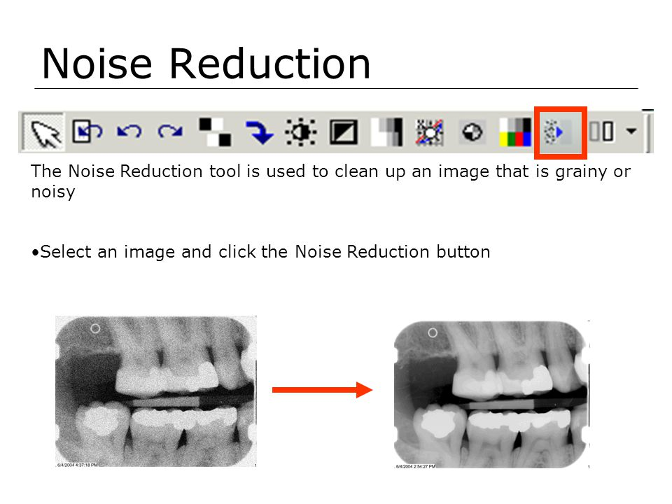 Noise Reduction The Noise Reduction tool is used to clean up an image that is grainy or noisy.