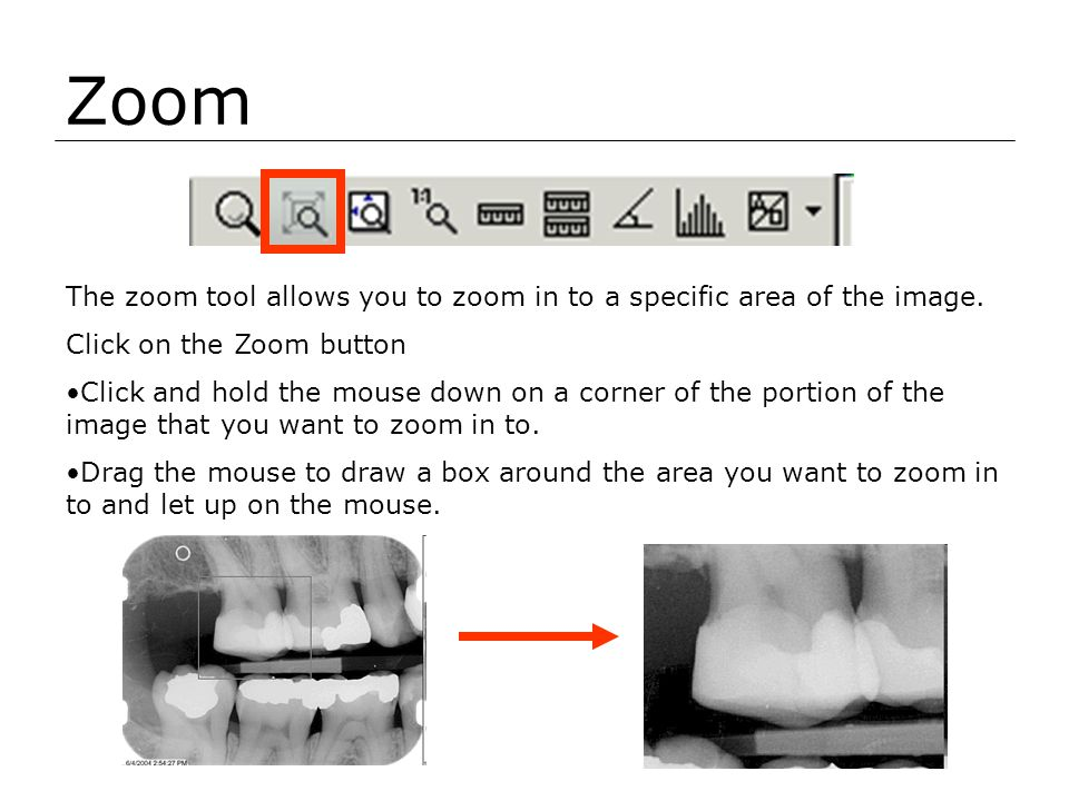 Zoom The zoom tool allows you to zoom in to a specific area of the image. Click on the Zoom button.