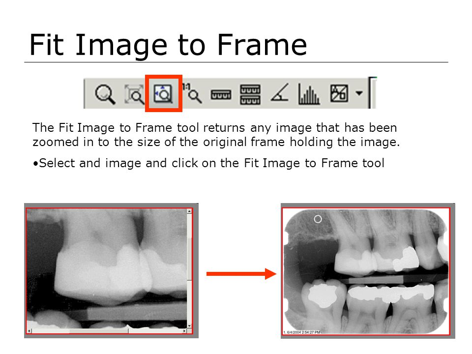 Fit Image to Frame The Fit Image to Frame tool returns any image that has been zoomed in to the size of the original frame holding the image.