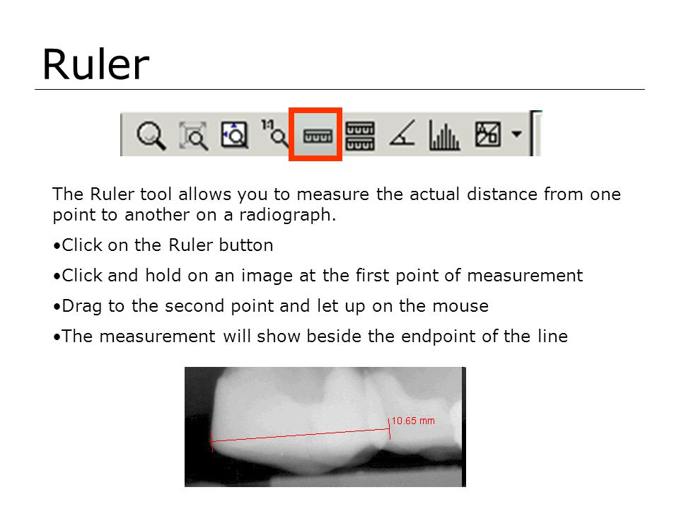 Ruler The Ruler tool allows you to measure the actual distance from one point to another on a radiograph.