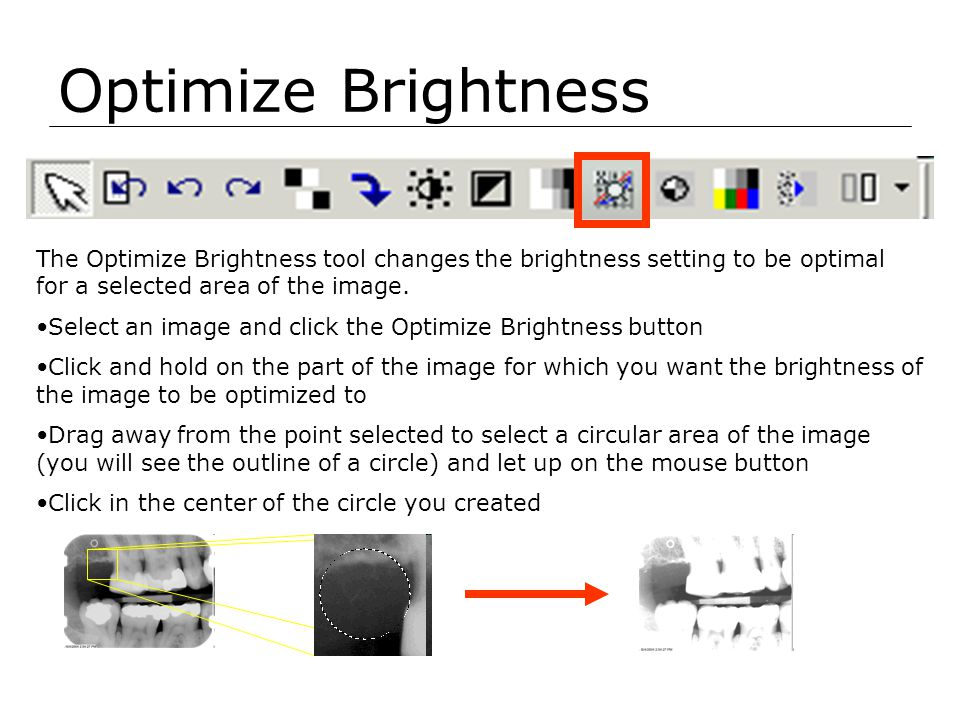 Optimize Brightness The Optimize Brightness tool changes the brightness setting to be optimal for a selected area of the image.