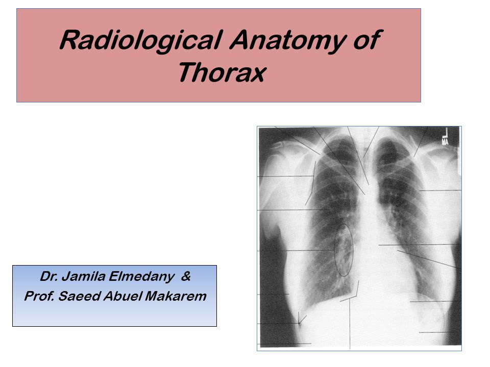 Radiological Anatomy of Thorax