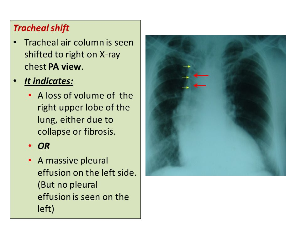 Tracheal shift Tracheal air column is seen shifted to right on X-ray chest PA view. It indicates: