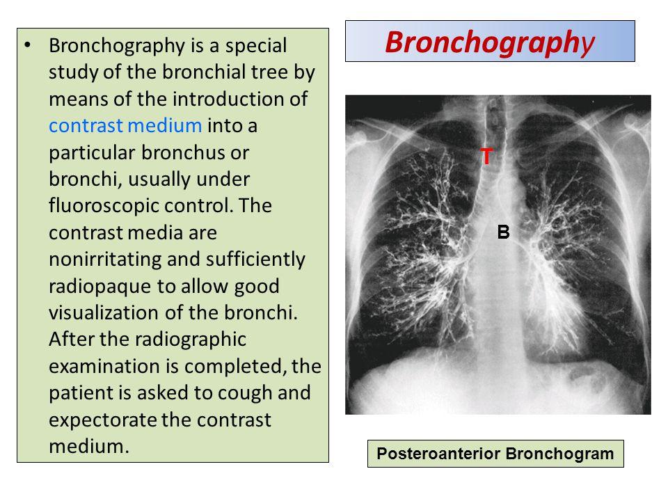 Posteroanterior Bronchogram