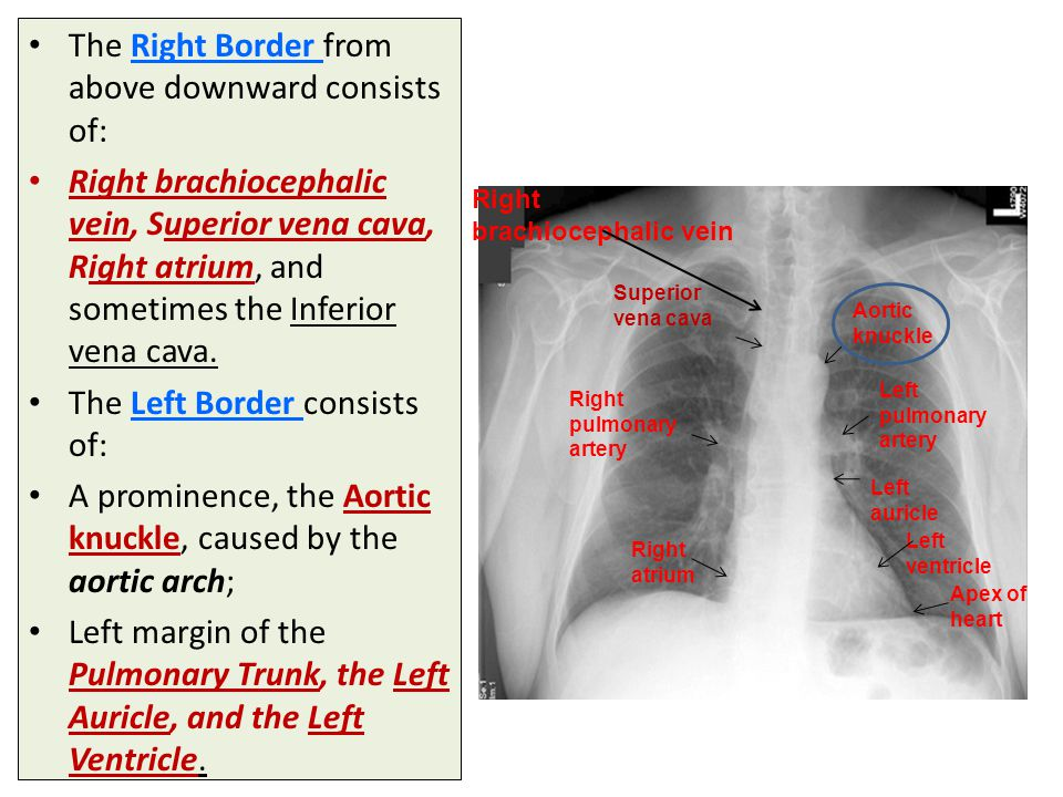 The Right Border from above downward consists of: