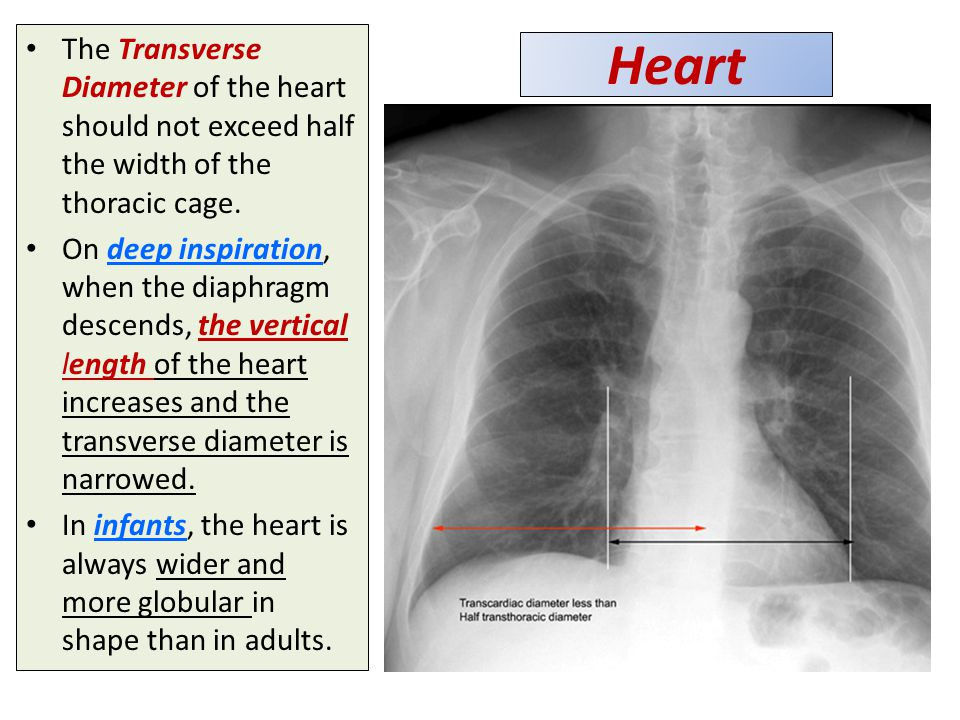 The Transverse Diameter of the heart should not exceed half the width of the thoracic cage.