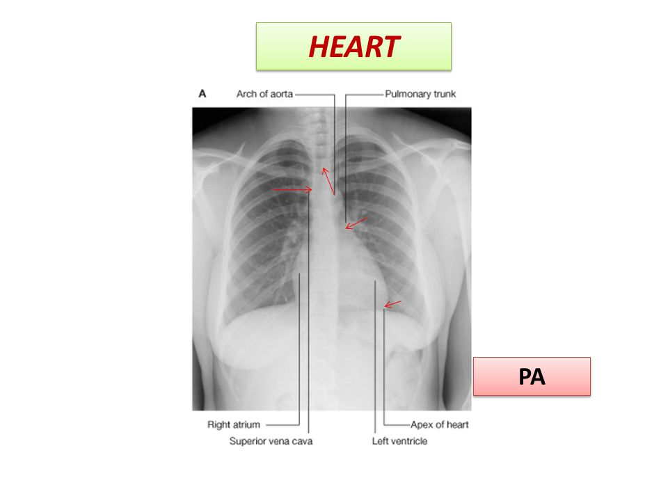 HEART PA
