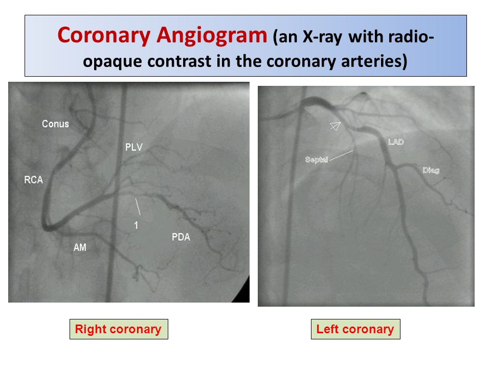 Coronary Angiogram (an X-ray with radio-opaque contrast in the coronary arteries)