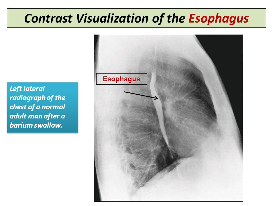 Contrast Visualization of the Esophagus