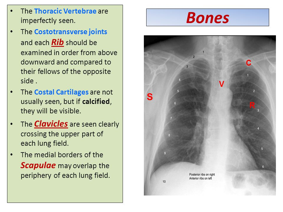 Bones S The Thoracic Vertebrae are imperfectly seen.