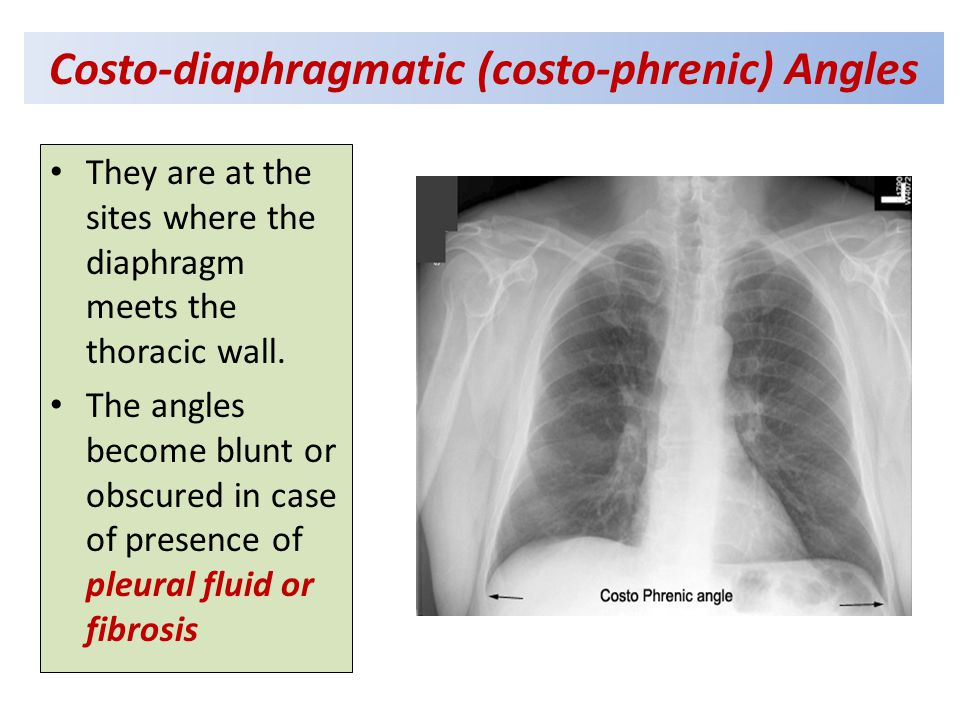 Costo-diaphragmatic (costo-phrenic) Angles